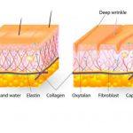 Hududslet, træt og tør hud